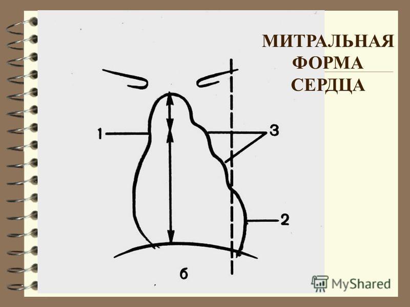 МИТРАЛЬНАЯ ФОРМА СЕРДЦА