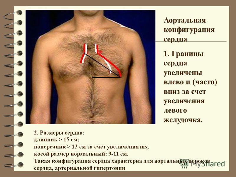 2. Размеры сердца: длинник > 15 см; поперечник > 13 см за счет увеличения ms; косой размер нормальный: 9-11 см. Такая конфигурация сердца характерна для аортальных пороков сердца, артериальной гипертонии Аортальная конфигурация сердца 1. Границы серд