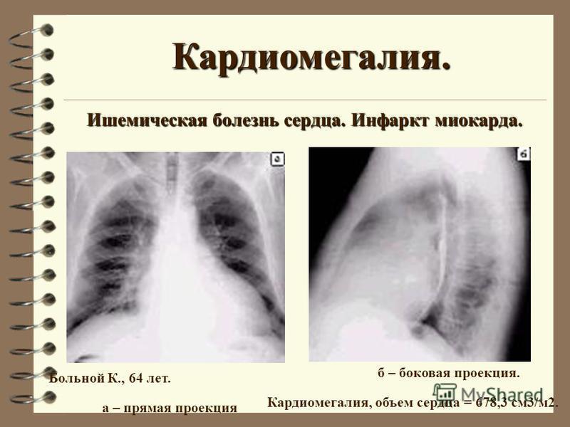 Кардиомегалия. Ишемическая болезнь сердца. Инфаркт миокарда. Больной К., 64 лет. а – прямая проекция б – боковая проекция. Кардиомегалия, объем сердца = 678,3 см 3/м 2.
