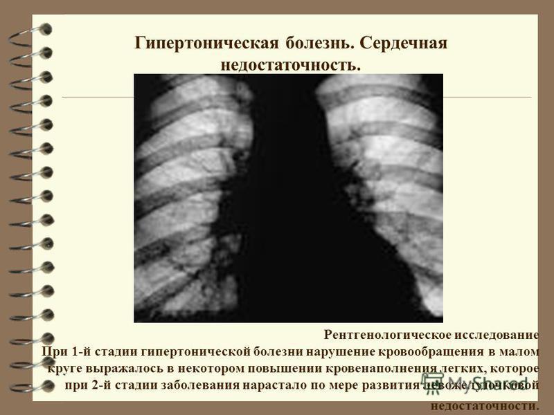 Гипертоническая болезнь. Сердечная недостаточность. Рентгенологическое исследование При 1-й стадии гипертонической болезни нарушение кровообращения в малом круге выражалось в некотором повышении кровенаполнения легких, которое при 2-й стадии заболева