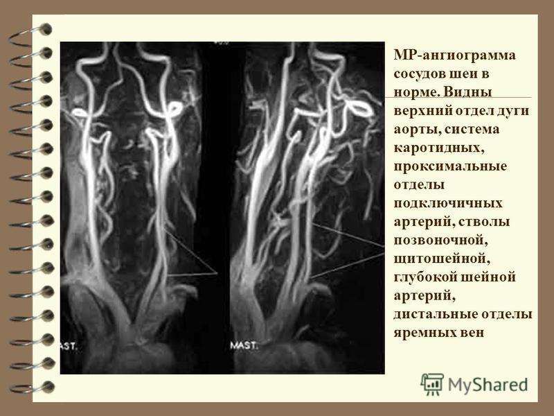 МР-ангиограмма сосудов шеи в норме. Видны верхний отдел дуги аорты, система каротидных, проксимальные отделы подключичных артерий, стволы позвоночной, щитошейной, глубокой шейной артерий, дистальные отделы яремных вен
