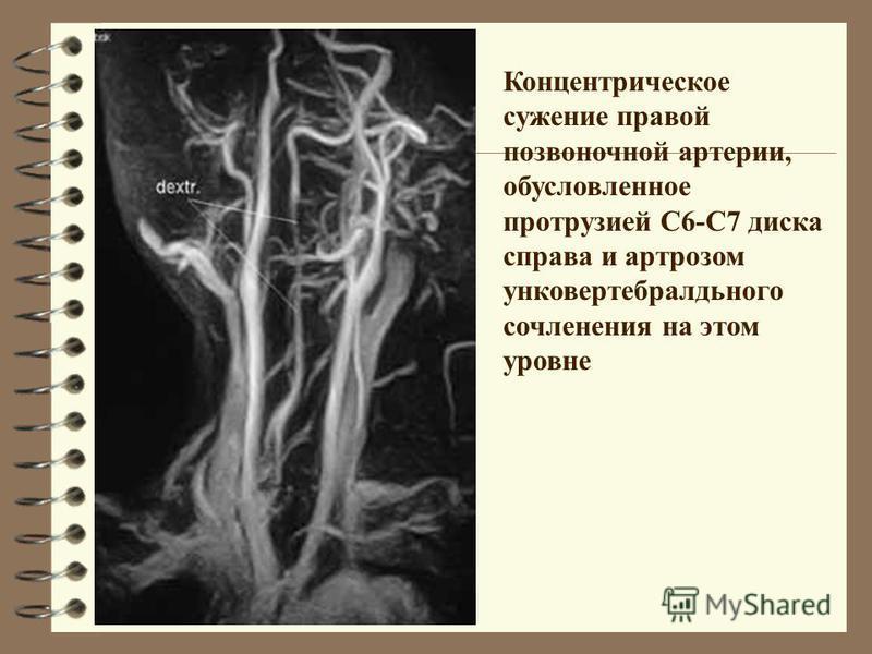 Концентрическое сужение правой позвоночной артерии, обусловленное протрузией С6-С7 диска справа и артрозом унковертебралдьнего сочленения на этом уровне