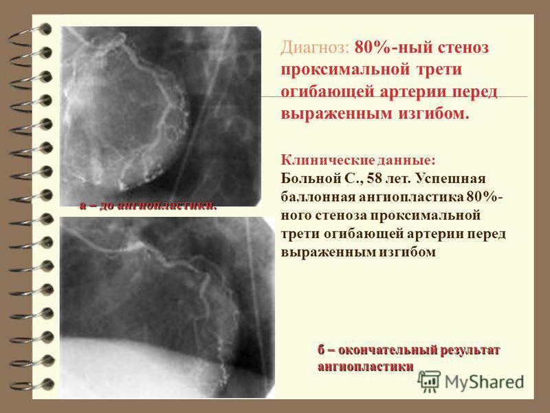 Клинические данные: Больной С., 58 лет. Успешная баллонная ангиопластика 80%- него стеноза проксимальной трети огибающей артерии перед выраженным изгибом Диагноз: 80%-ный стеноз проксимальной трети огибающей артерии перед выраженным изгибом. а – до а