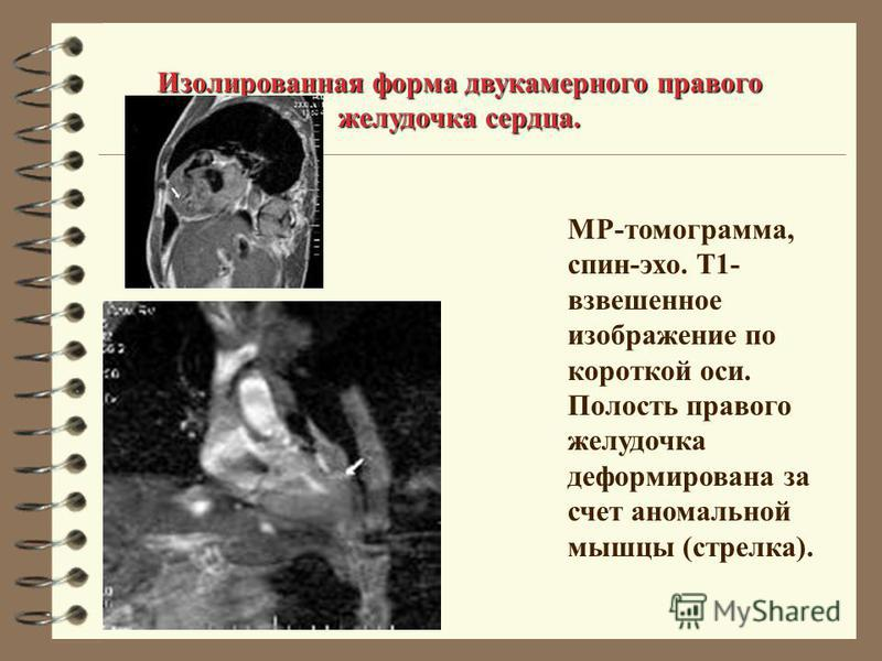 Изолированная форма двукамернего правого желудочка сердца. МР-томограмма, спин-эхо. Т1- взвешенное изображение по короткой оси. Полость правого желудочка деформирована за счет аномальной мышцы (стрелка).