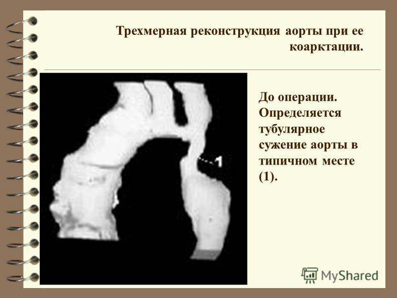 Трехмерная реконструкция аорты при ее коарктации. До операции. Определяется тубулярное сужение аорты в типичном месте (1).