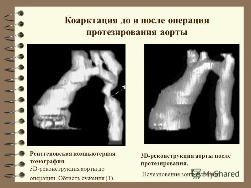 Коарктация до и после операции протезирования аорты Рентгеновская компьютерная томография 3D-реконструкция аорты до операции. Область сужения (1). 3D-реконструкция аорты после протезирования. Исчезновение зоны сужения.