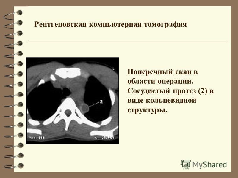Рентгеновская компьютерная томография Поперечный скан в области операции. Сосудистый протез (2) в виде кольцевидной структуры.