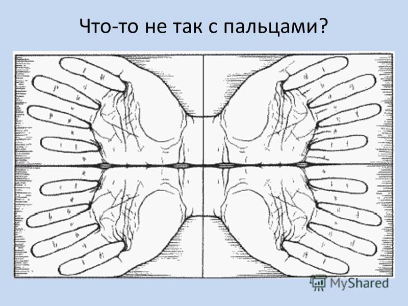 Что-то не так с пальцами?