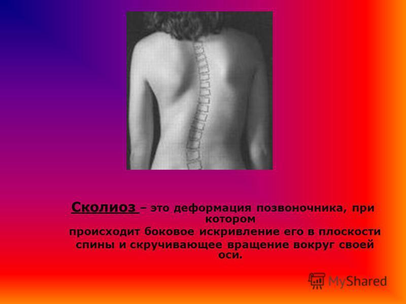 Сколиоз – это деформация позвоночника, при котором происходит боковое искривление его в плоскости спины и скручивающее вращение вокруг своей оси.