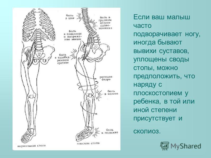 Если ваш малыш часто подворачивает ногу, иногда бывают вывихи суставов, уплощены своды стопы, можно предположить, что наряду с плоскостопием у ребенка, в той или иной степени присутствует и сколиоз.