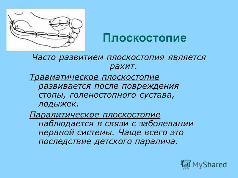 Плоскостопие Часто развитием плоскостопия является рахит. Травматическое плоскостопие развивается после повреждения стопы, голеностопного сустава, лодыжек. Паралитическое плоскостопие наблюдается в связи с заболевании нервной системы. Чаще всего это