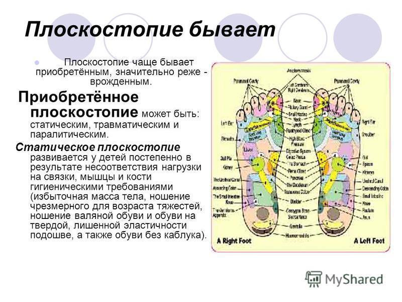 Плоскостопие бывает Плоскостопие чаще бывает приобретённым, значительно реже - врожденным. Приобретённое плоскостопие может быть: статическим, травматическим и паралитическим. Статическое плоскостопие развивается у детей постепенно в результате несоо