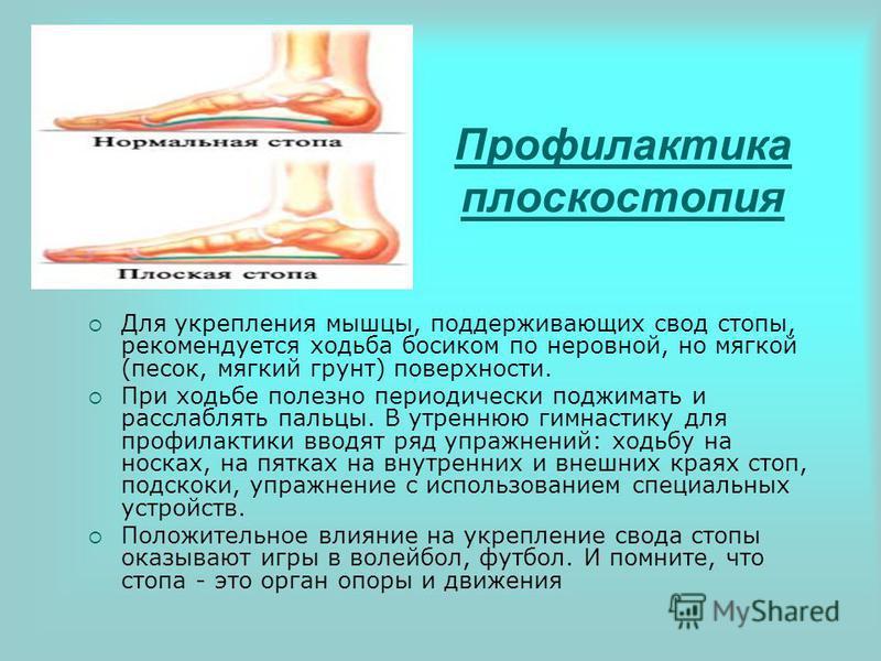 Профилактика плоскостопия Для укрепления мышцы, поддерживающих свод стопы, рекомендуется ходьба босиком по неровной, но мягкой (песок, мягкий грунт) поверхности. При ходьбе полезно периодически поджимать и расслаблять пальцы. В утреннюю гимнастику дл