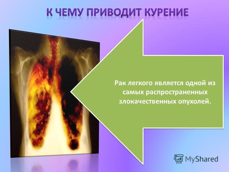Рак легкого является одной из самых распространенных злокачественных опухолей. Рак легкого является одной из самых распространенных злокачественных опухолей.