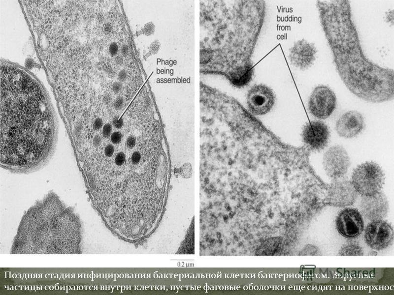 Поздняя стадия инфицирования бактериальной клетки бактериофагом. Вирусные частицы собираются внутри клетки, пустые фаговые оболочки еще сидят на поверхности.