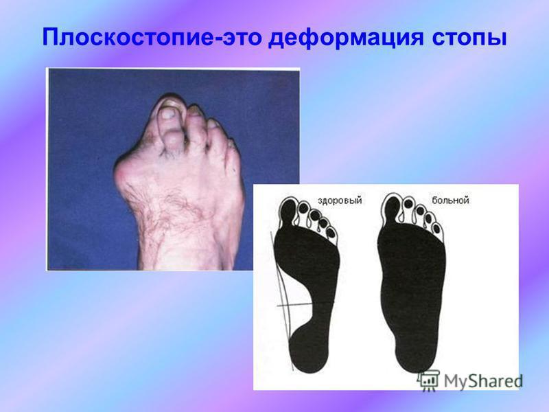 Плоскостопие-это деформация стопы