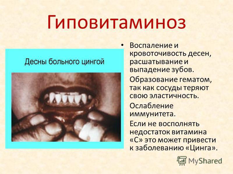 Гиповитаминоз Воспаление и кровоточивость десен, расшатывание и выпадение зубов. Образование гематом, так как сосуды теряют свою эластичность. Ослабление иммунитета. Если не восполнять недостаток витамина «С» это может привести к заболеванию «Цинга».