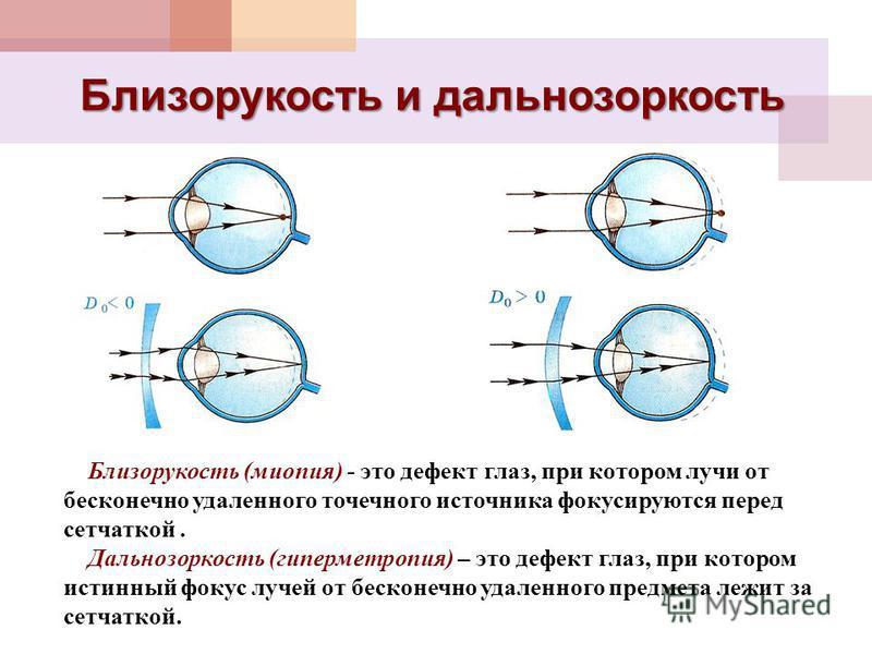 Близорукость и дальнозоркость Близорукость (миопия) - это дефект глаз, при котором лучи от бесконечно удаленного точечного источника фокусируются перед сетчаткой. Дальнозоркость (гиперметропия) – это дефект глаз, при котором истинный фокус лучей от б