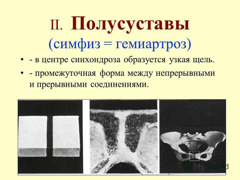 II. Полусуставы (симфиз = гемиартроз) - в центре синхондроза образуется узкая щель. - промежуточная форма между непрерывными и прерывными соединениями.
