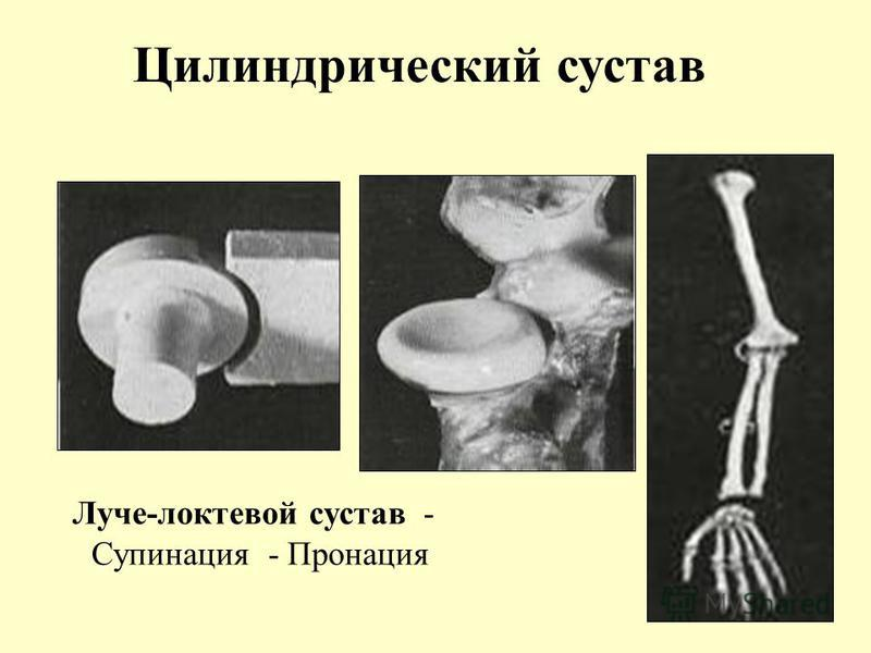 Цилиндрический сустав Луче-локтевой сустав - Супинация - Пронация
