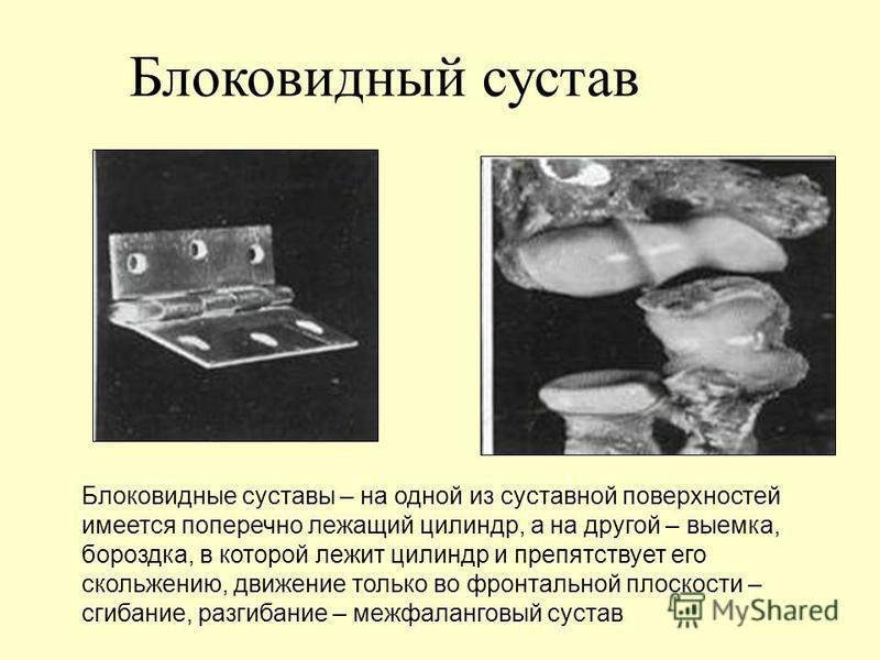 Блоковидный сустав Блоковидные суставы – на одной из суставной поверхностей имеется поперечно лежащий цилиндр, а на другой – выемка, бороздка, в которой лежит цилиндр и препятствует его скольжению, движение только во фронтальной плоскости – сгибание,