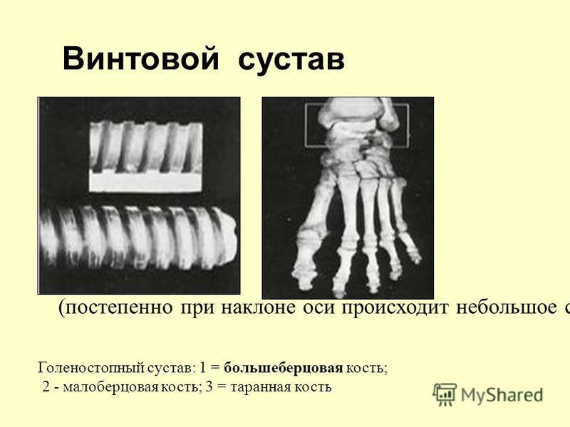 (постепенно при наклоне оси происходит небольшое спиральное смещение) Голеностопный сустав: 1 = большеберцовая кость; 2 - малоберцовая кость; 3 = таранная кость Винтовой сустав