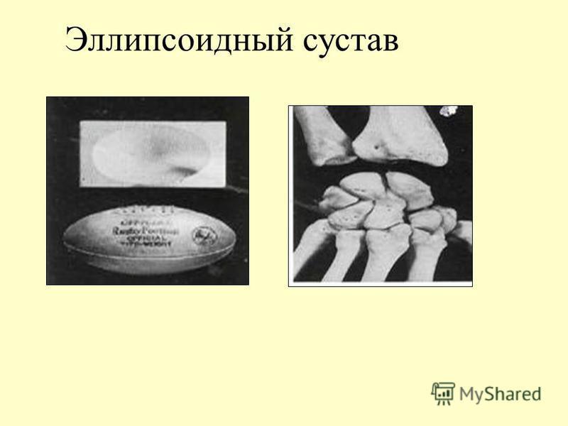 Высохший сустав деформирующий коксартроз тазобедренного сустава реабилитация