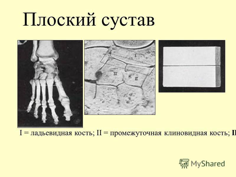 Плоский сустав I = ладьевидная кость; II = промежуточная клиновидная кость; III = латеральная клиновидная кость