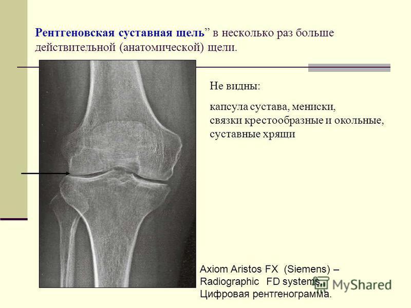 Рентгеновская суставная щель в несколько раз больше действительной (анатомической) щели. Axiom Aristos FX (Siemens) – Radiographic FD systems. Цифровая рентгенограмма. Не видны: капсула сустава, мениски, связки крестообразные и окольные, суставные хр