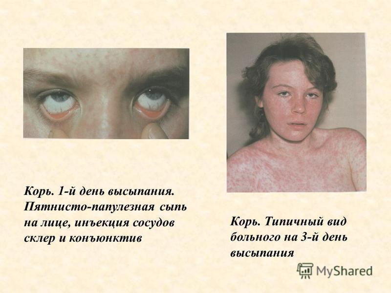 Корь. 1-й день высыпания. Пятнисто-папулезная сыпь на лице, инъекция сосудов склер и конъюнктив Корь. Типичный вид больного на 3-й день высыпания