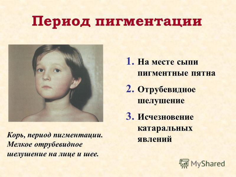 Период пигментации 1. На месте сыпи пигментные пятна 2. Отрубевидное шелушение 3. Исчезновение катаральных явлений Корь, период пигментации. Мелкое отрубевидное шелушение на лице и шее.
