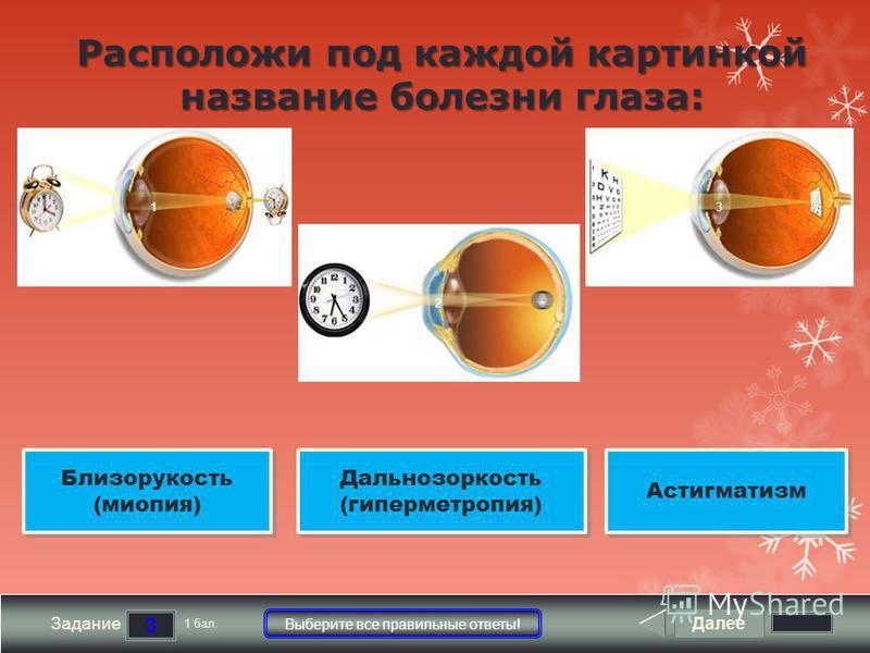 Далее 3 Задание 1 бал. Выберите все правильные ответы! 1 2 3 Расположи под каждой картинкой название болезни глаза: Дальнозоркость (гиперметропия) Дальнозоркость (гиперметропия) Астигматизм Близорукость (миопия) Близорукость (миопия)