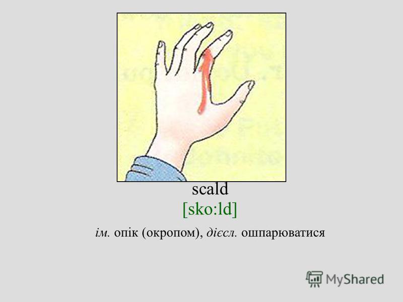 scald [sko:ld] ім. опік (окропом), дієсл. ошпарюватися