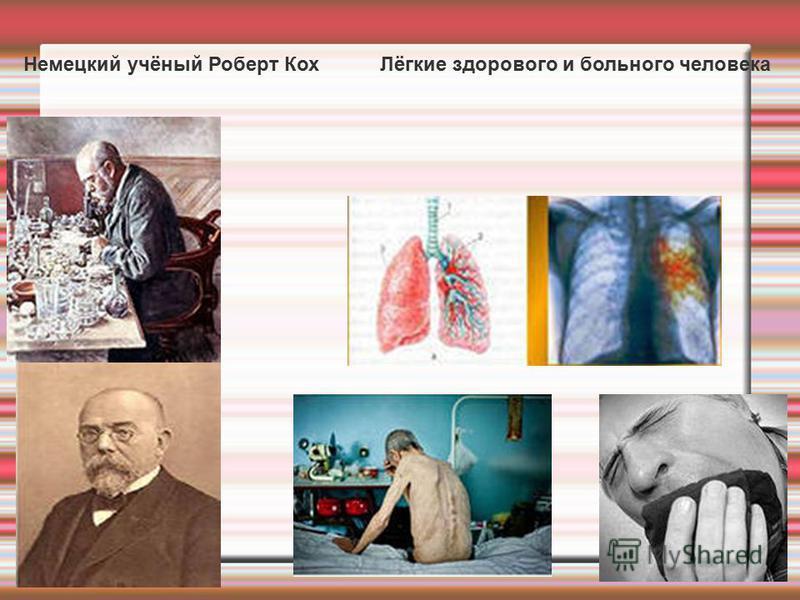 Немецкий учёный Роберт Кох Лёгкие здорового и больного человека
