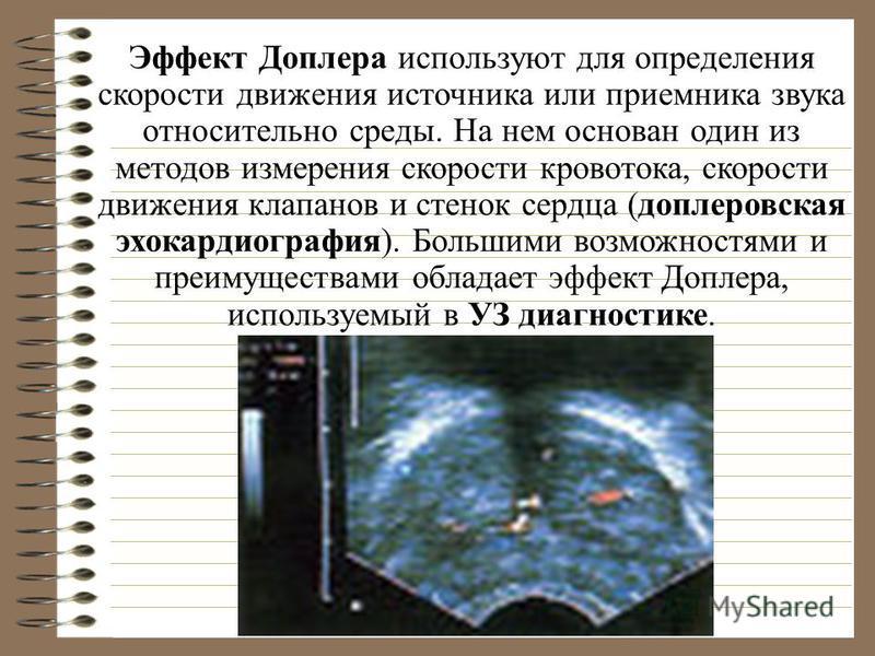 Эффект Доплера доплеровская эхокардиография УЗ диагностике Эффект Доплера используют для определения скорости движения источника или приемника звука относительно среды. На нем основан один из методов измерения скорости кровотока, скорости движения кл