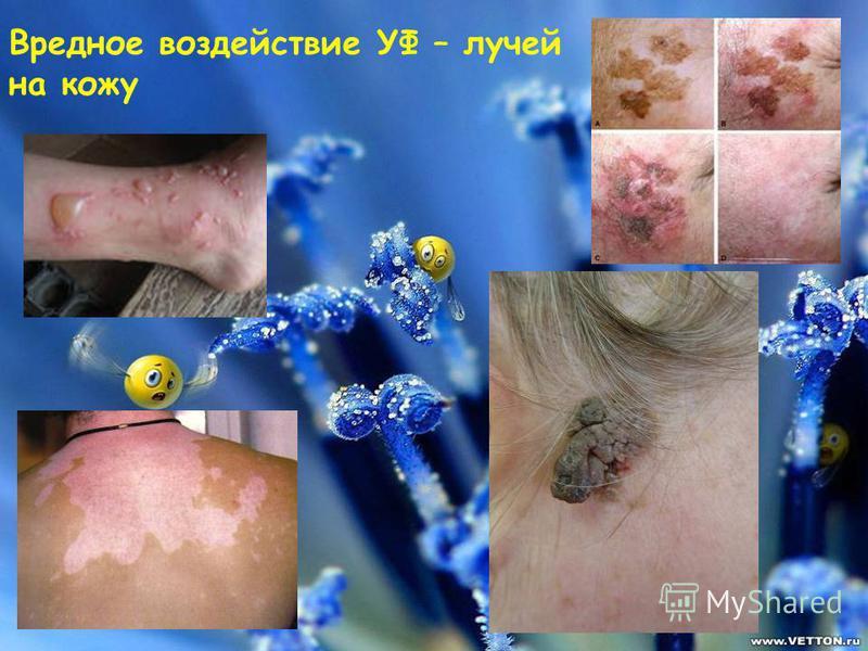 Вредное воздействие УФ – лучей на кожу