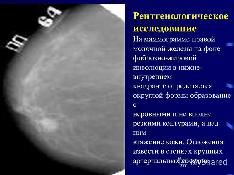 Рентгенологическое исследование На маммограмме правой молочной железы на фоне фиброзно-жировой инволюции в нижнеммм- внутреннем квадранте определяется округлой формы образование с неровными и не вполне резкими контурами, а над ним – втяжение кожи. От