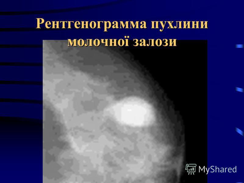 Рентгенограмма пухлини молочної залози