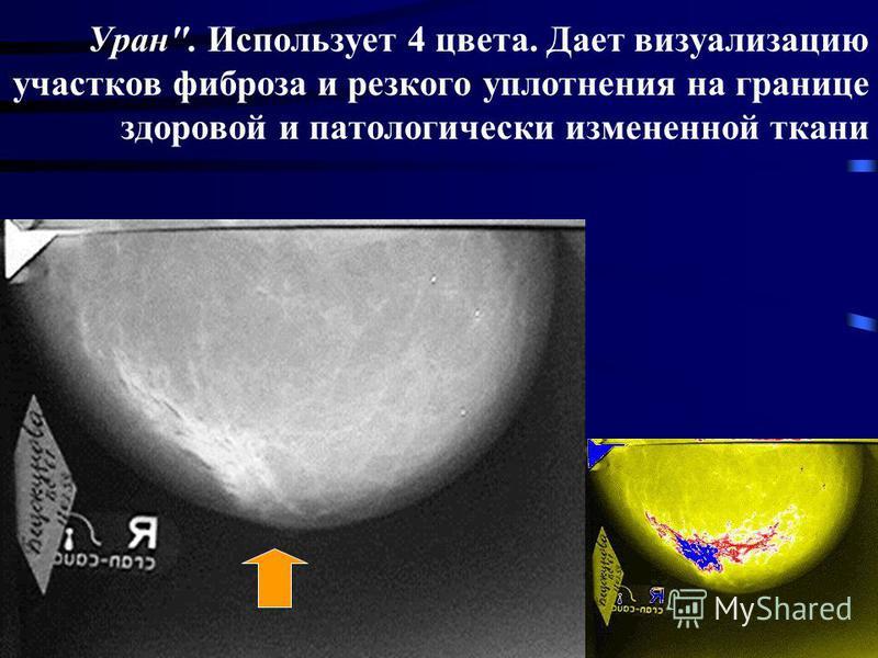 Уран. Использует 4 цвета. Дает визуализацию участков фиброза и резкого уплотнения на границе здоровой и патологически измененной ткани