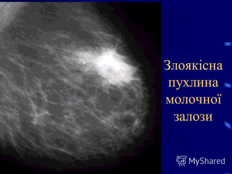 Злоякісна пухлина молочної залози