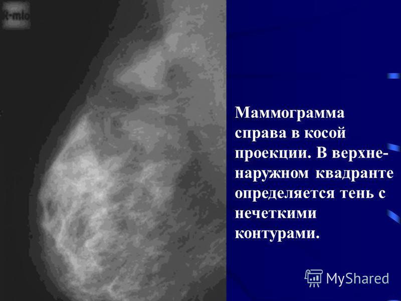 Маммограмма справа в косой проекции. В верхней- наружном квадранте определяется тень с нечеткими контурами.