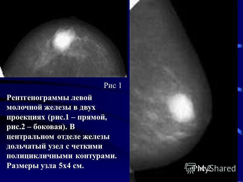 Рентгенограммы левой молочной железы в двух проекциях (рис.1 – прямой, рис.2 – боковая). В центральном отделе железы дольчатый узел с четкими полицикличными контурами. Размеры узла 5 х 4 см. Рис 1 Рис 2