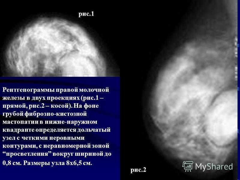Рентгенограммы правой молочной железы в двух проекциях (рис.1 – прямой, рис.2 – косой). На фоне грубой фиброзно-кистозной мастопатии в нижнеммм-наружном квадранте определяется дольчатый узел с четкими неровными контурами, с неравномерной зоной просве
