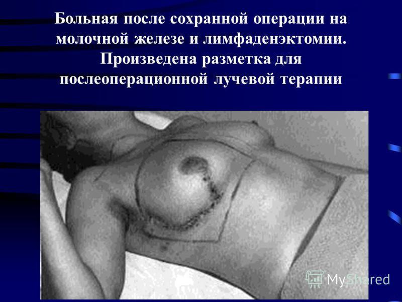 Больная после сохранной операции на молочной железе и лимфаденэктомии. Произведена разметка для послеоперационной лучевой терапии
