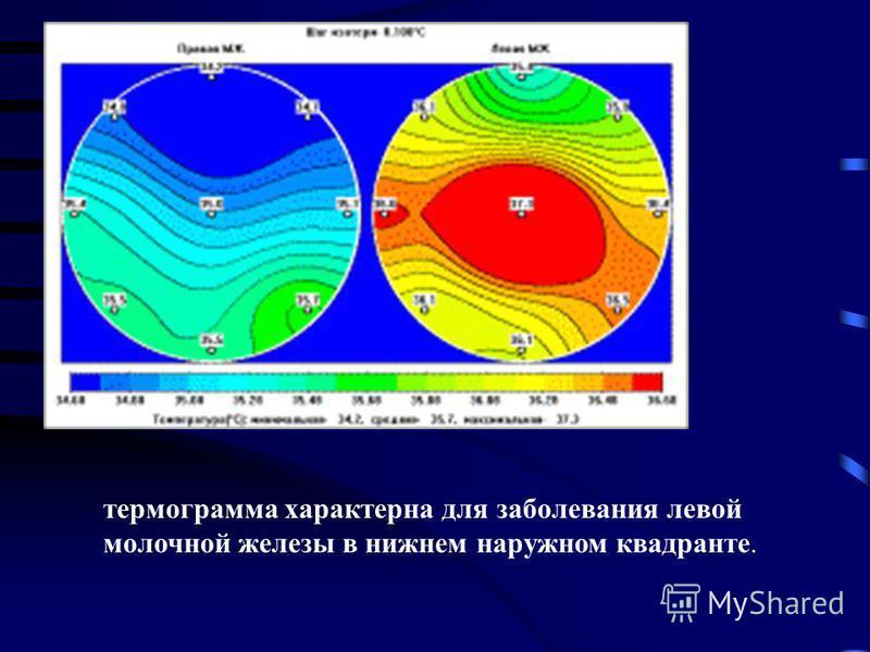 термограмма характерна для заболевания левой молочной железы в нижнемммм наружном квадранте.