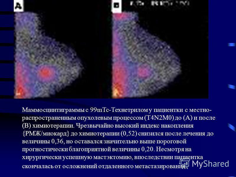Маммосцинтиграммы с 99mTc-Технетрилом у пациентки с местно- распространенным опухолевым процессом (T4N2M0) до (А) и после (В) химиотерапии. Чрезвычайно высокий индекс накопления {РМЖ/миокард} до химиотерапии (0,52) снизился после лечения до величины
