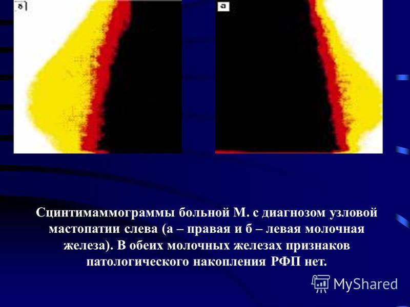 Сцинтимаммограммы больной М. с диагнозом узловой мастопатии слева (а – правая и б – левая молочная железа). В обеих молочных железах признаков патологического накопления РФП нет.