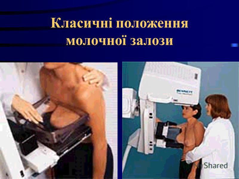 Класичні положения молочної залози