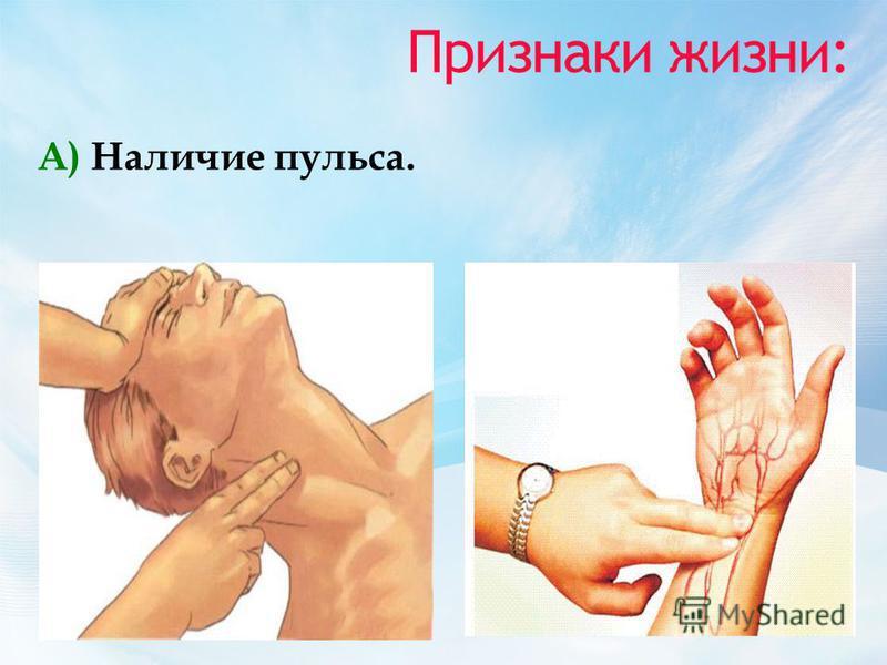 Признаки жизни: А) Наличие пульса.