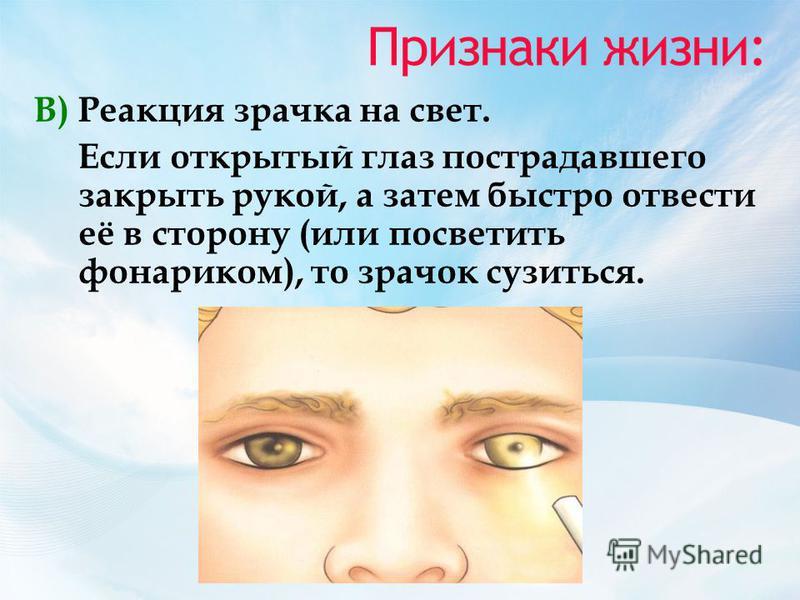 Признаки жизни: В) Реакция зрачка на свет. Если открытый глаз пострадавшего закрыть рукой, а затем быстро отвести её в сторону (или посветить фонариком), то зрачок сузиться.
